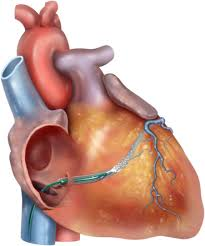 Image showing the position of Coronary sinus