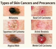 Image explains about Skin cancers