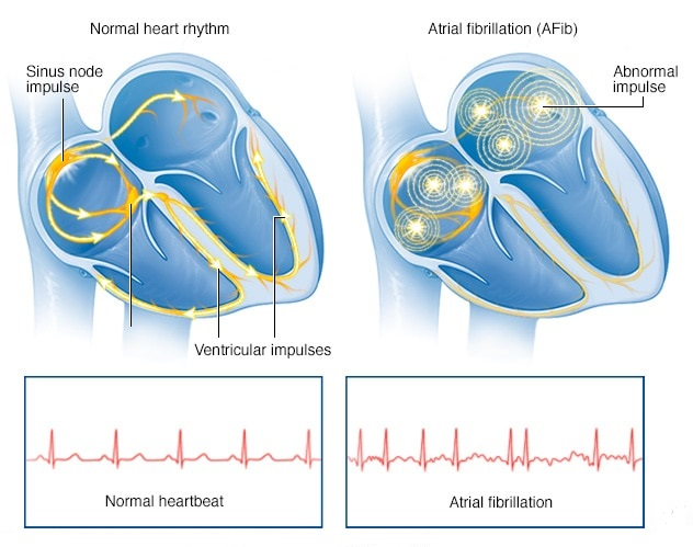 Image showing the difference between normal heartbeat and atrial fibrillation heartbeat.