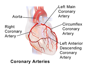Image of Coronary arteries are affected by Coronary artery ectasia