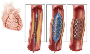 Image showing the coronary angioplasty with stunt figure