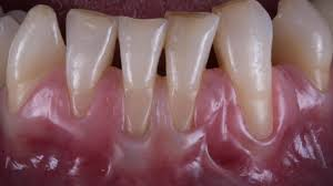 Image of Gingival recession, Source-Wikipedia