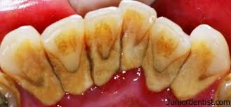 Image of Dental calculus Source-Wikipedia