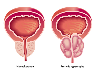 Image explains about Prostate cancer