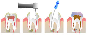 Image of Root canal therapy  Source-Wikipedia