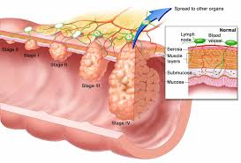 Image explains about Esophageal cancer