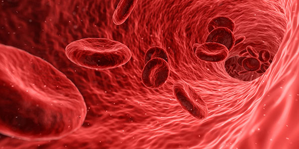 This image is related to Polycythemia - Source Wikipedia