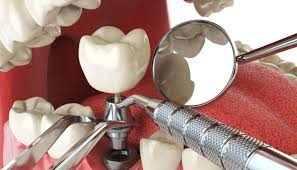 Image of Operative dentistry Source-Wikipedia