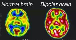 This image explains about bipolar disorder which includes stress, depression, phobias and many more