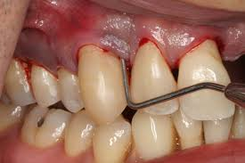 Image of Gum Disease Source-Wikipedia