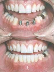 Image of Dental prosthesis  Source-Wikipedia