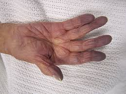 image showing Cyanosis of the hand in an elderly person with low oxygen saturation