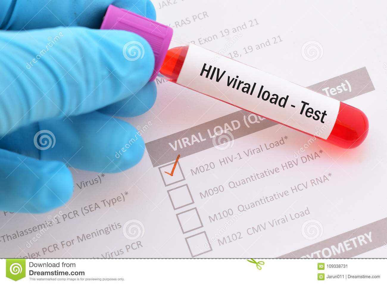 This image is related to Viral load - Source Wikipedia