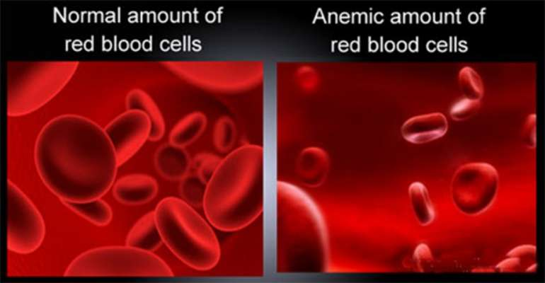 This image is related to Anemia - Source Wikipedia