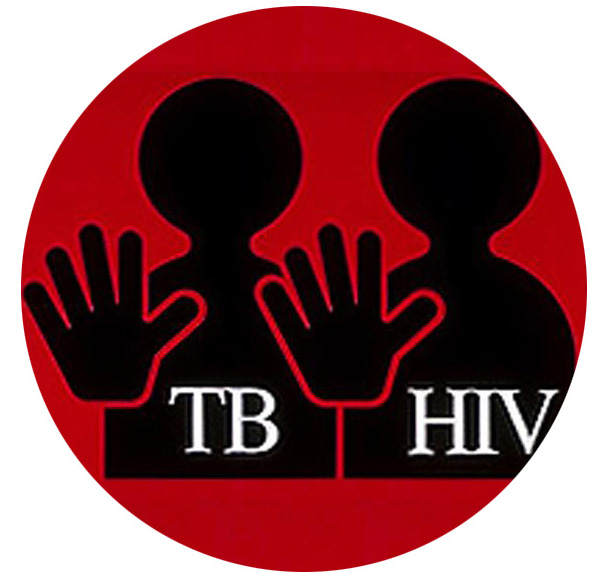 This image is related to HIV and TB - Source Wikipedia