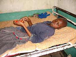 This image is related to HIV Malnutrition- Source Wikipedia