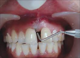 Image of Periodontic-Endodontic lesions Source-Wikipedia