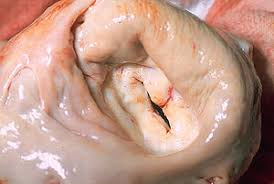 Image showing the Mitral valve stenosis