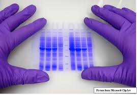 This image is related to Western blot test - Source Wikipedia
