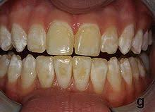 Image of Dental Fluorosis Source-Wikipedia