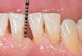 Image of Tooth Mobility Source-Wikipedia