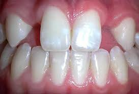 Image of Hypodontia Source-Wikipedia