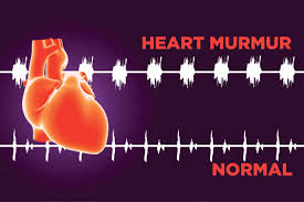 Image showing the difference between normal and heart murmur