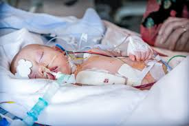 Image showing the children having Hypoplastic left heart syndrome