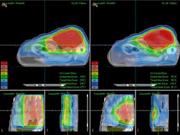 Image explains about Radiation oncology -Source Wikipedia